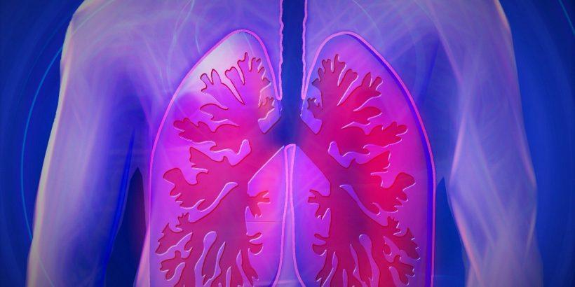 Lungenkrebs überlebt